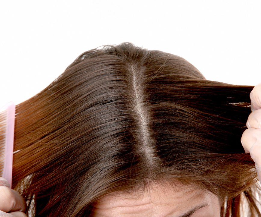 LETS TALK ABOUT DANDRUFF, SHALL WE?